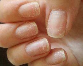Что делать при расслоении ногтей на руках