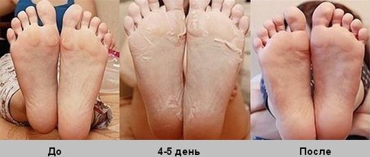 Японские носочки для педикюра: инструкция по применению, цена