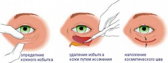 процедура блефаропластики