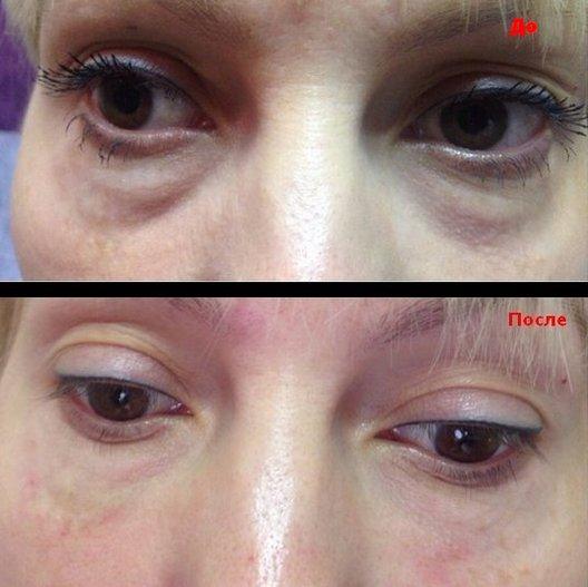 коррекция фото до и после
