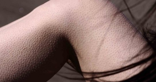 кератоз на теле