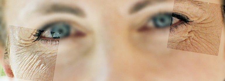 Как в домашних условиях убрать гусиные лапки с глаз