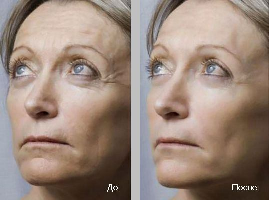 фото женщин до и после процедуры
