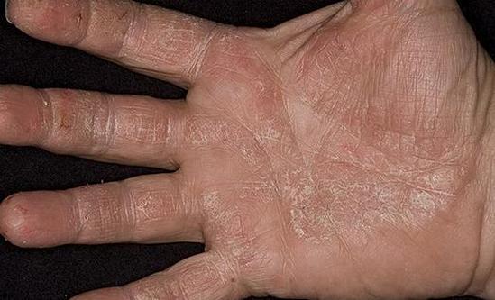 ладони облазит кожа