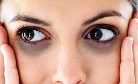 синие круги вокруг глаз