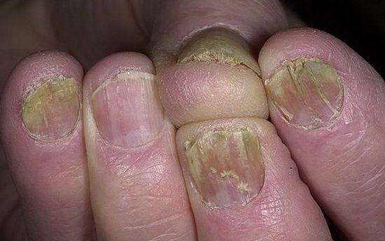 ногти рук поразил грибок