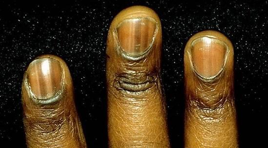 ногти с кожей черные