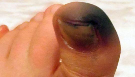 фото черного пальца