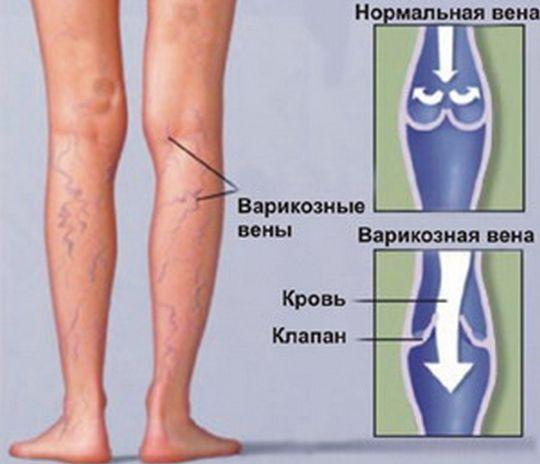 палкп для расширени ног