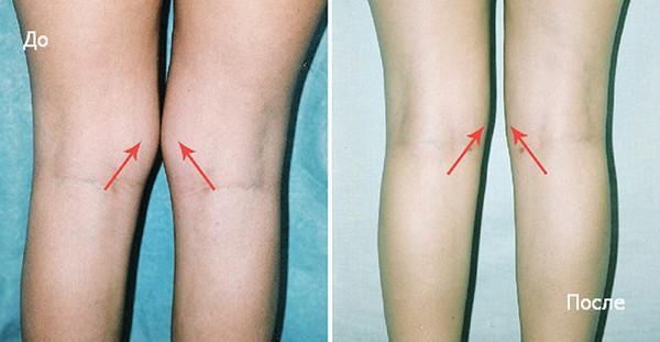липосакция коленей до и после фото
