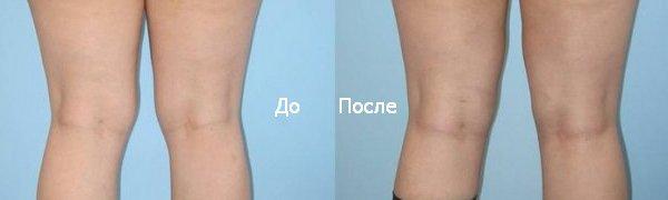 красивые ноги и колени