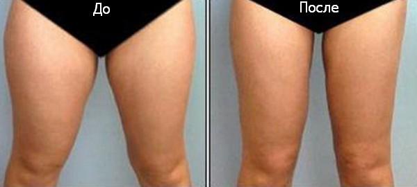 похудение ног после