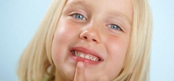 причины сухости рта