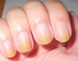 Причины пожелтения ногтей на руках и что делать