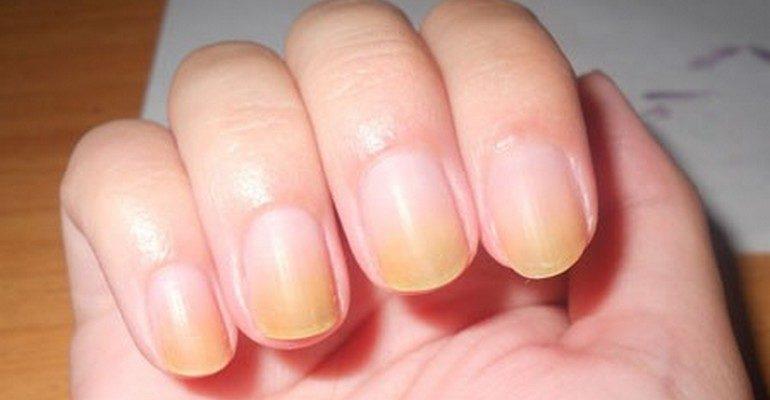 Почему ногти становятся оранжевыми 65