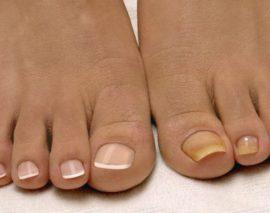 От чего ногти желтеют на ногах: основные причины