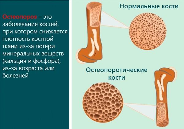 инфографика по остеопорозу