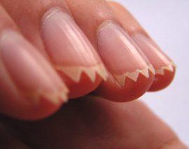 Причины, почему ногти на руках стали ребристыми