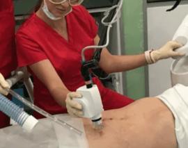 Как происходит лазерное удаление шрамов на теле